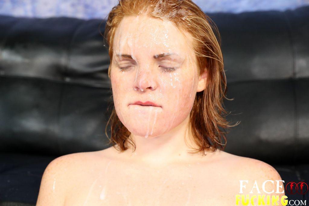 Cesarean itching vagina pain intercourse
